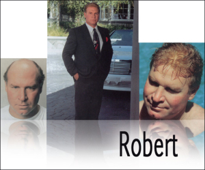 robert hair replacement denver before and after